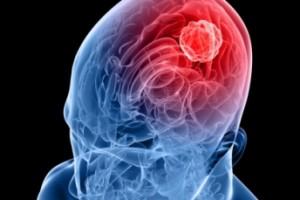 1424002787-0-meningite-sintomi-e-terapie-per-combatterla