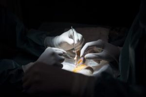 chirurgia__mani_afp
