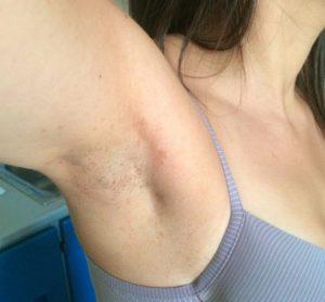 tireidectomia transascellare