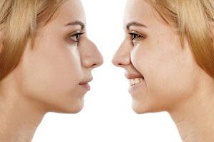 Rinoplastica-chirurgia-estetica-naso-londeiclinic