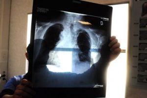 radiografia_fg_3-1-3092912372