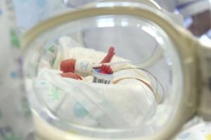 foto-neonatologia-opbg