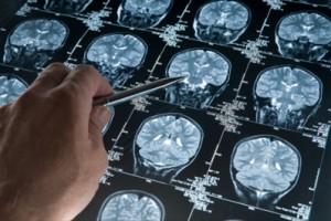 diagnosi_tumore_cervello