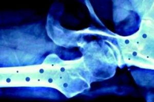osteoporosi-31