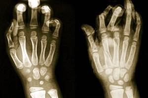 osteoporosi4