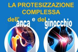 protesi-anca
