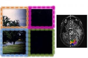 riorganizzazione cerebrale Pisa