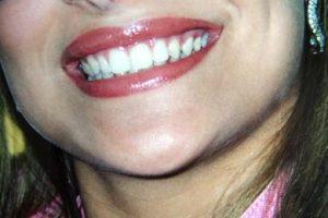 sorriso_ftg